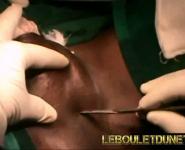 operation-des-couilles